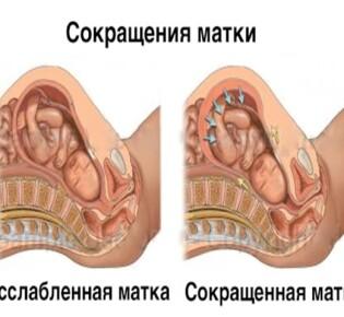 Сокращение матки после родов: сколько дней сокращается матка после родов, как долго это происходит и что делать для более быстрого восстановления?