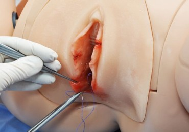 Эпизиотомия при родах