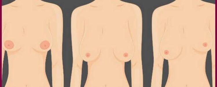 Правда ли, что у женщин одна грудь больше другой?