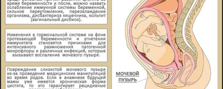 Чем лечить цистит при грудном вскармливании, список таблеток разрешенных при ГВ