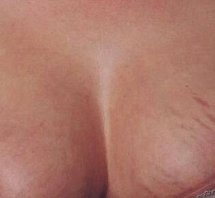 Как убрать растяжки на груди при беременности и после родов?