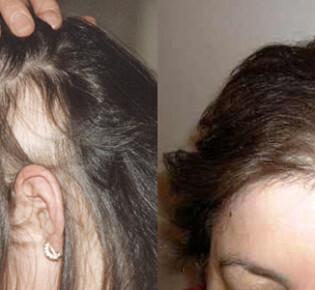 Сильно выпадают волосы после родов: что делать – причины и лечение