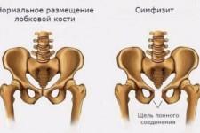 Симфизит после родов: лечение, как долго болит лобковая кость, причины появления, степени