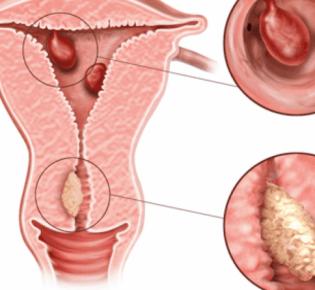 Плацентарный полип — причины, симптомы, диагностика и лечение