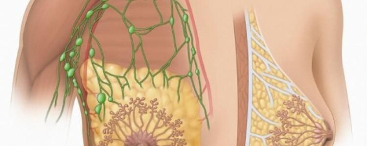 Мастопатия молочной железы: симптомы и признаки, лечение