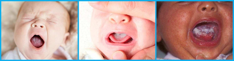 появление белого налета во рту