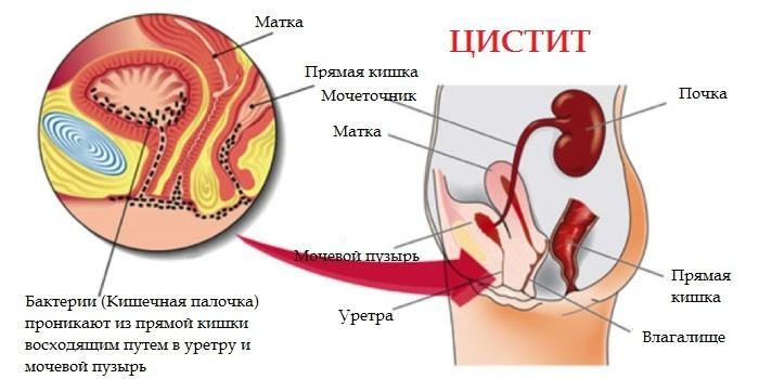 Чем лечить цистит при гв