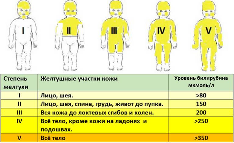 zheltyshka-u-novorozhdennogo
