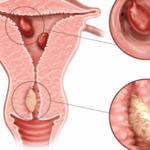 Плацентарный полип - причины, симптомы